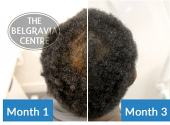 Afro Hair Male Hair Loss Treatment triumph tale - Thinning Crown