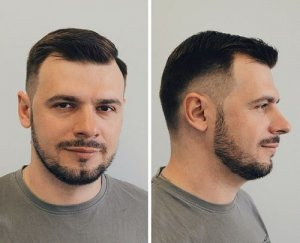 fade haircut for males with receding hairline